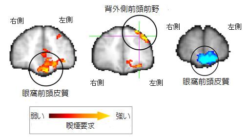 fMRI画像.jpg